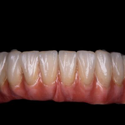 Implanty